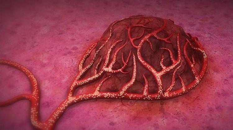 Kanserle ilgili yeni bulgu